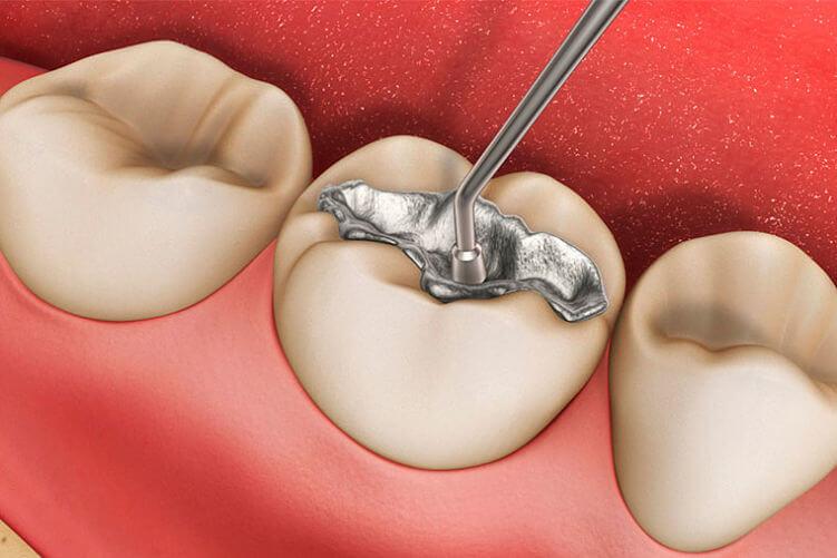 clinica odontologica barcelona
