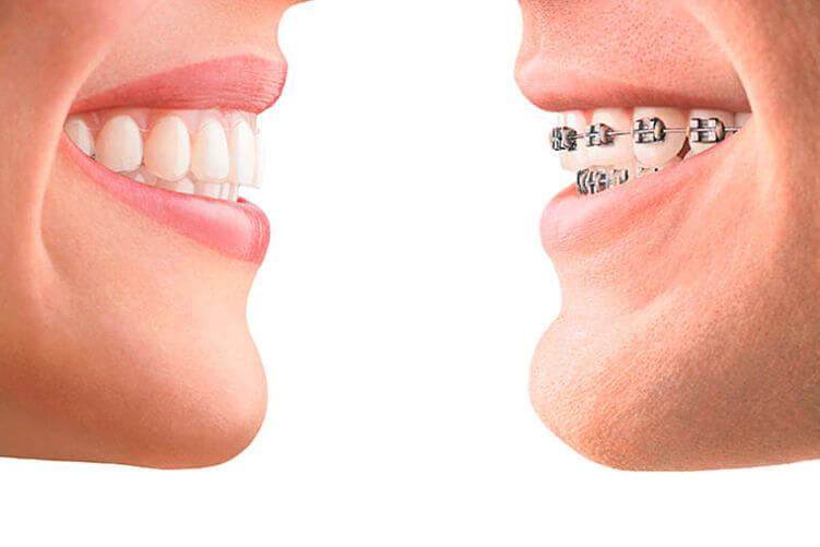aparatos de ortodoncia: estética dental
